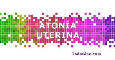 Atonía uterina